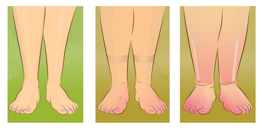 Embarazo piernas mejorar circulacion