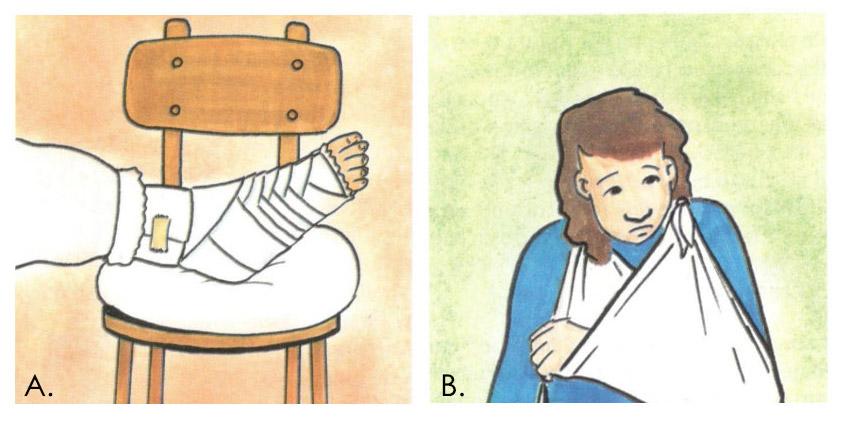 Lesiones de esguinces y luxaciones