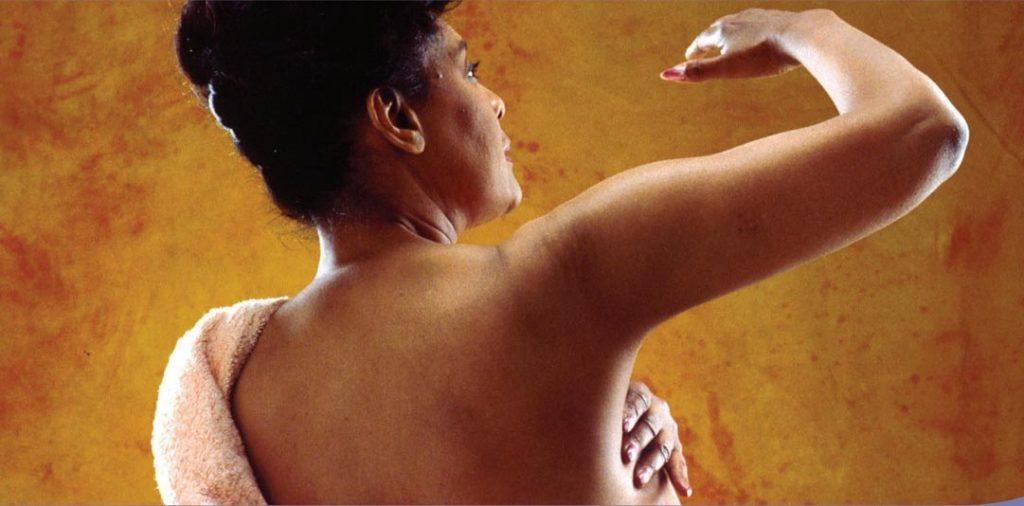 cáncer de mama prevención