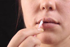 reconocer herpes de afta