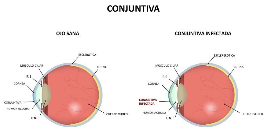 Conjuntivitis en el ojo
