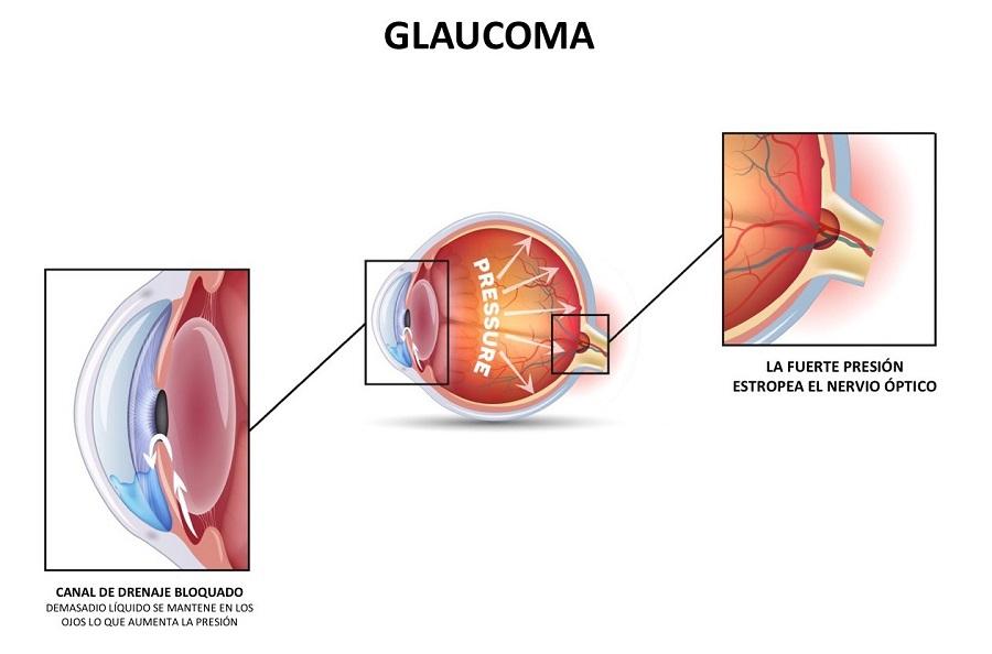 Glaucoma en los ojos