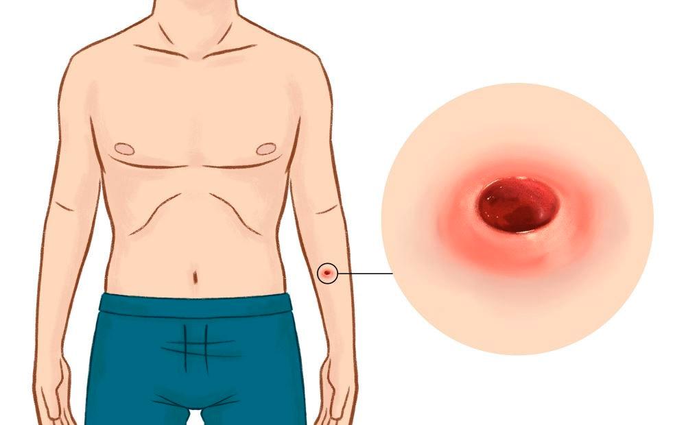 síntomas de Difteria