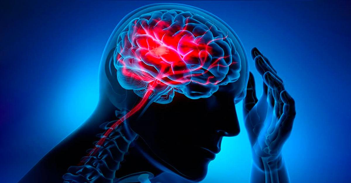 Prevenir el Accidente Cerebrovascular